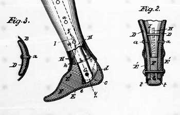 Page from James Hall and Terence Sparham's 1894 patent, ARTIFICIAL LEG; 10 pages